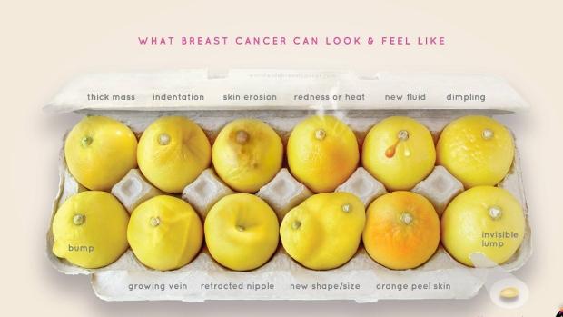 kanser payudara